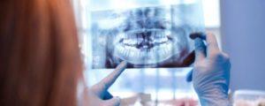 Röntgen von schiefen Zähnen