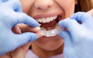 Kieferorthopäde steckt Patient unsichtbare Zahnspange in den Mund
