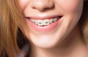 Jugendliche hat feste Zahnspange in Mund