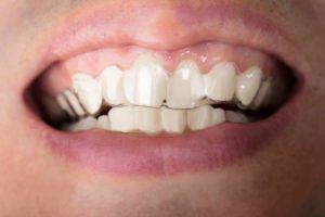 Schiefe Zähne mit durchsichtiger Zahnspange
