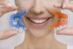 lose Zahnspange in blau und orange