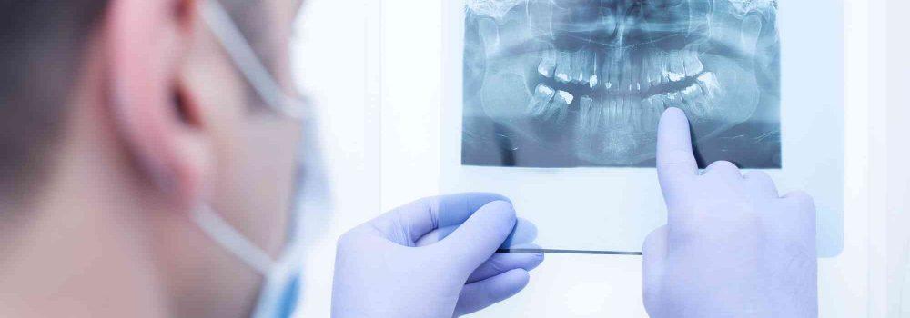 Finger zeigt auf ein Röntgenbild